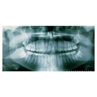 Panoramic dental X ray of impacted wisdom teeth Poster